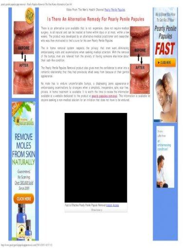 Penile papules natural treatment