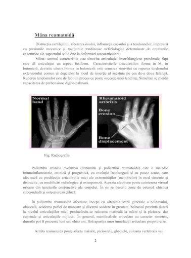 greu de pierdut în greutate cu artrita reumatoidă)
